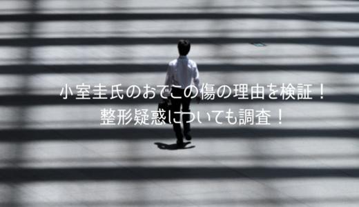 小室圭氏のおでこの傷の理由を検証!3つの整形疑惑についても調査!